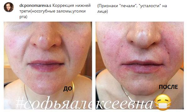 филлер до и после, носогубные складки, косметолог Иваново